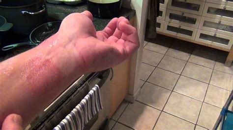Ringworm and Eczema Nail polish cure - Part 1 - YouTube